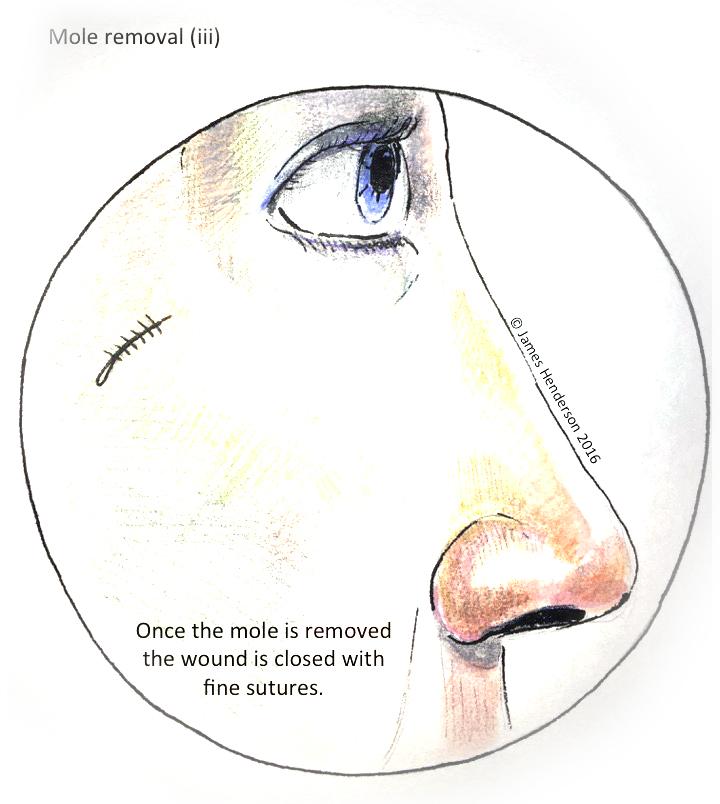 Moles and Skin Cancer - James Henderson - Specialist Hand Surgeon